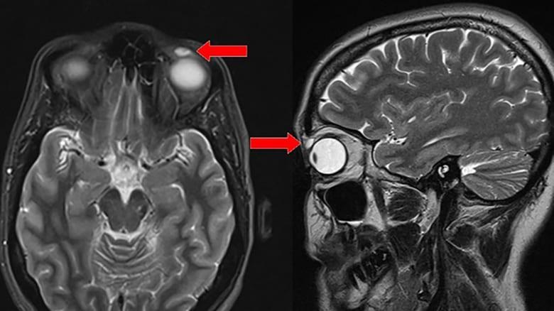 إمرأة تعثر على عدسة لاصقة استقرت في عينها منذ 28 عاماً
