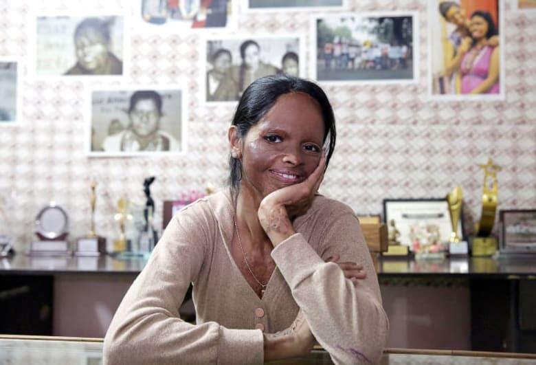 الممثلة الهندية الأعلى أجرا تنشر صورة لوجهها مشوها، فما السبب؟