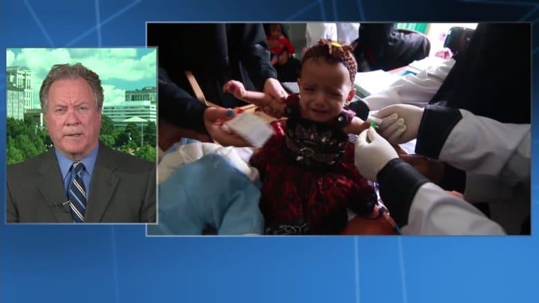 """مدير """"الأغذية العالمي"""" لـCNN: أطفال أبرياء يموتون باليمن بسبب الحوثيين"""