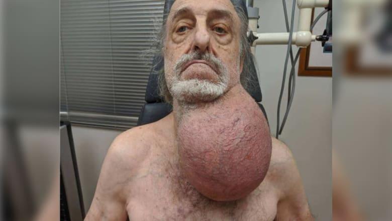 طبيب يستأصل ورم ضخم بحجم كرة قدم