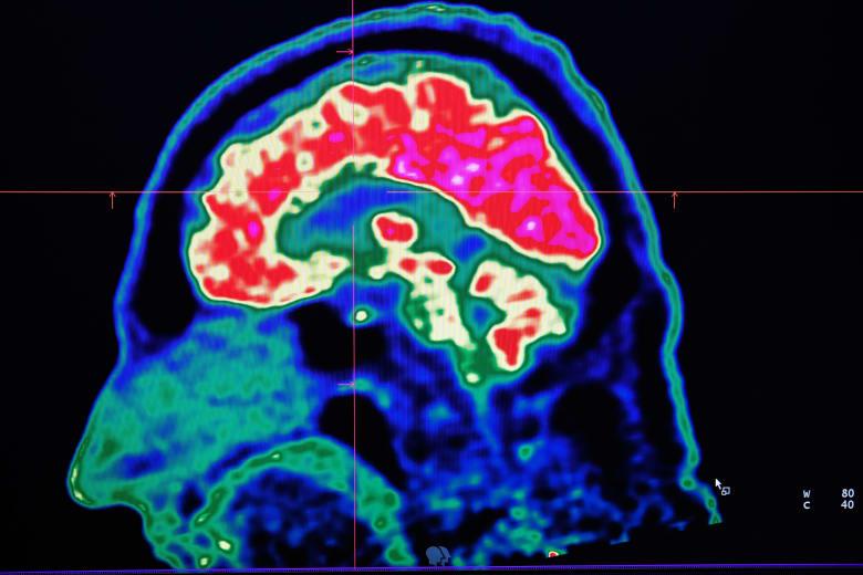 صورة للدماغ البشري