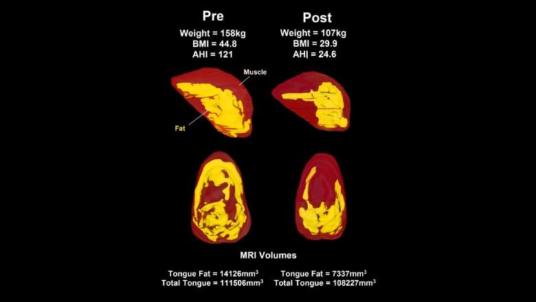 دراسة تكشف عن تأثير اللسان على انقطاع النفس النومي
