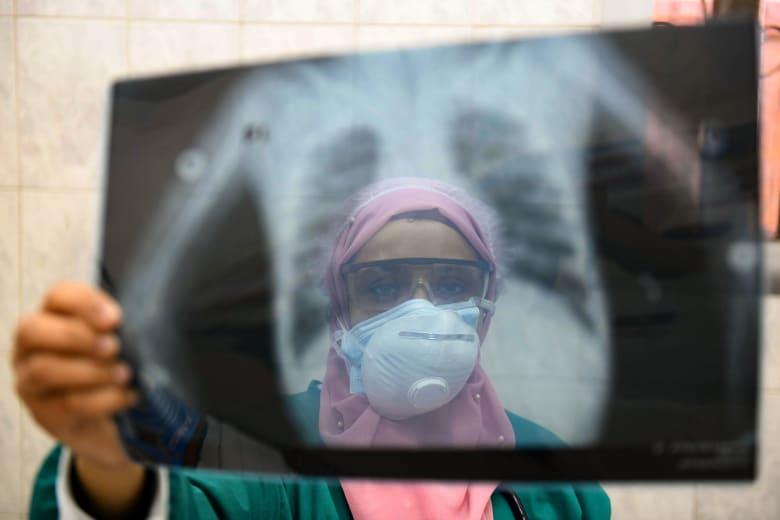 مصر تسجل أعلى معدل يومي لإصابات كورونا بزيادة 783.. و11 حالة وفاة