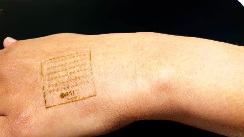 باحثون في أستراليا يطورون جلدا اصطناعياً يتفاعل مع الألم