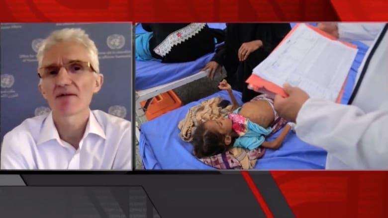 منسق الإغاثة بالأمم المتحدة: ليس من الصواب القول إن اليمنيين يعانون من الجوع.. إنهم يتضورون جوعاً