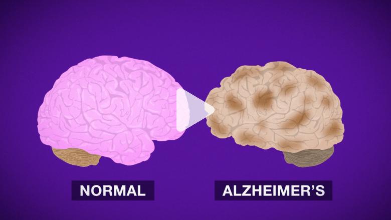 كيف يدمر مرض الزهايمر الدماغ؟