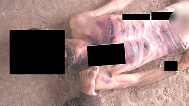 علامات تعذيب تظهر على الجزء الأعلى لجثة رجل يزعم أنه قتل في السجون السورية.