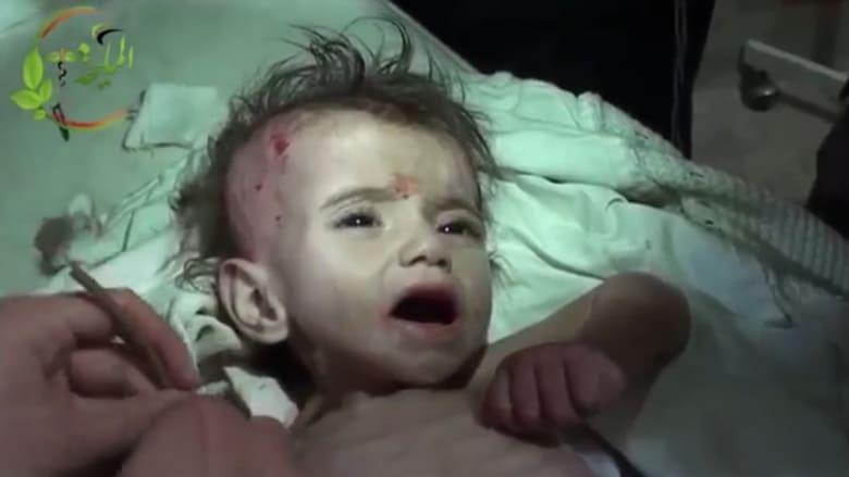 بعد البراميل.. الجوع يفتك بالأطفال في سوريا