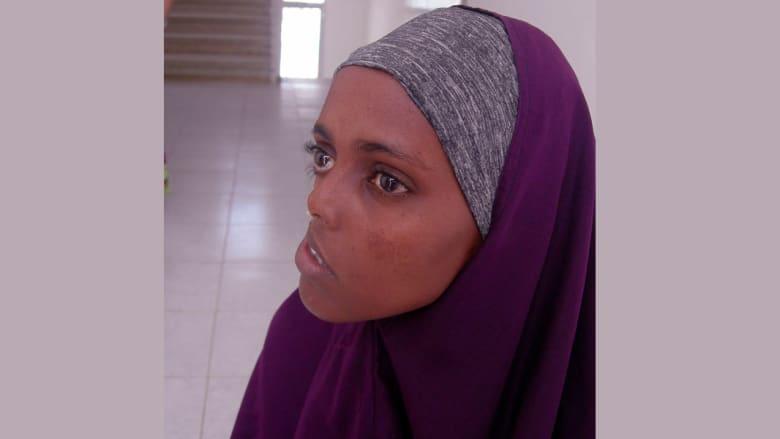 صومالية تنتظر عودة الابتسامة إلى وجهها منذ 23 عاماً