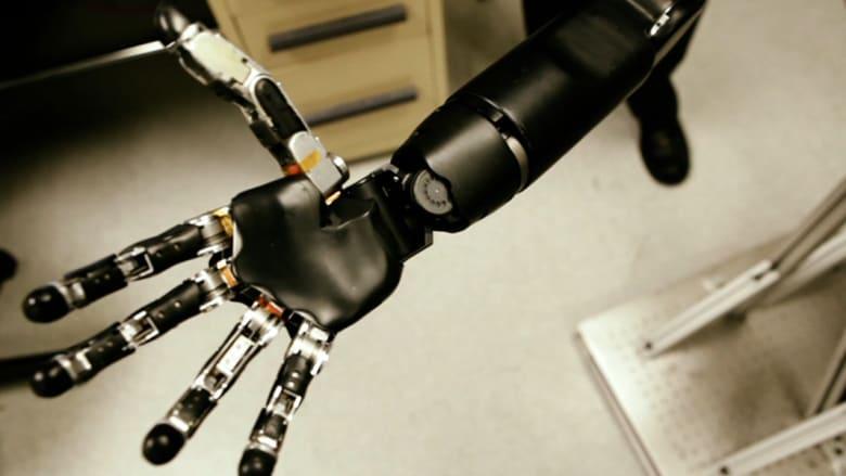 بالفيديو.. ذراع آلية يتحكم بها الدماغ