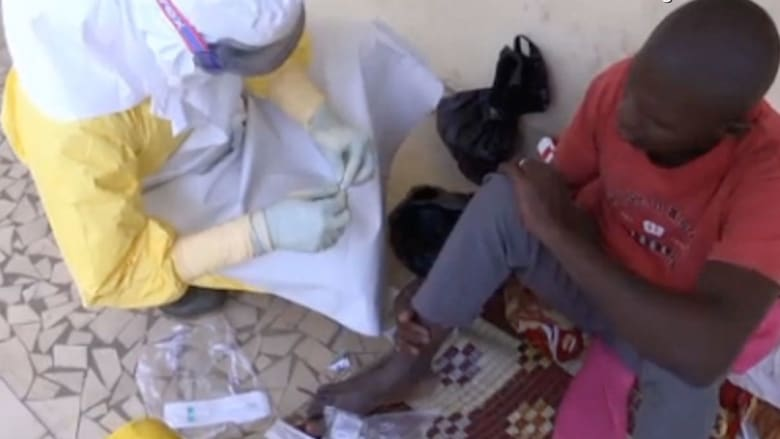 """غول """"إيبولا"""".. أكثر من 80 قتيلا حتى الآن بإفريقيا"""