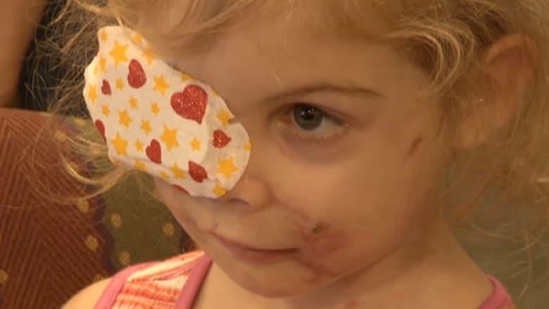 طبيب يتبرع بمساعدة الطفلة التي طردت من مطعم وجبات سريعة بسبب وجهها
