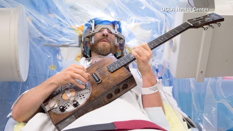 ما هي قصة الرجل الذي لعب الغيتار خلال عملية جراحية دماغية؟