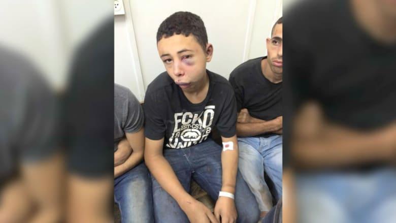 عناصر أمنية إسرائيلية تعتدي بالضرب العنيف على فتى أمريكي من أصل فلسطيني