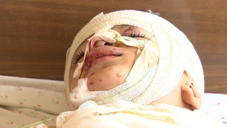 """""""بابا خليك"""".. رجاء من طفل جريح في غزة"""