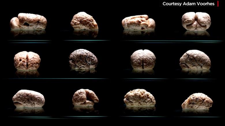 فقدان مائة دماغ لمصابين بأمراض عقلية