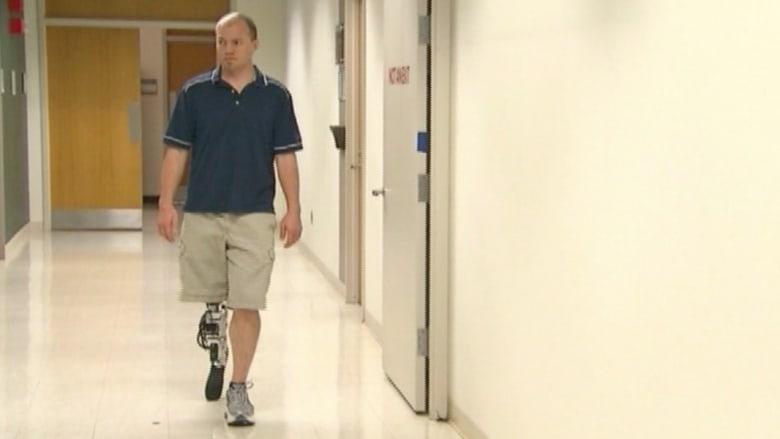 ساق اصطناعية ذكية تسمح لمبتوري الأرجل بالمشي الطبيعي