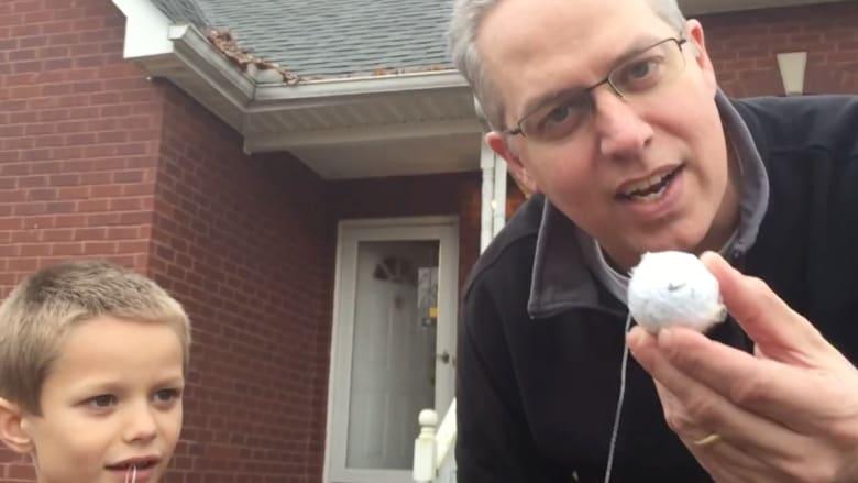 شاهد أباً يخلع ضرس ابنه باستخدام عصا الغولف!