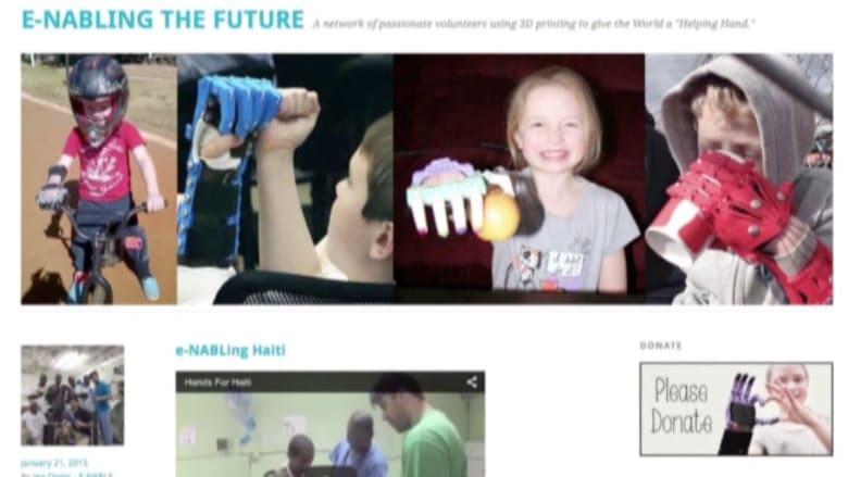 الطباعة ثلاثية الأبعاد تحول إعاقة طفل إلى قصة تستحق المشاهدة