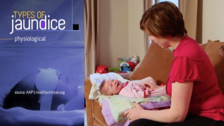 بالفيديو.. اليرقان يصيب 60% من المواليد الجدد وحليب الأم أفضل علاج