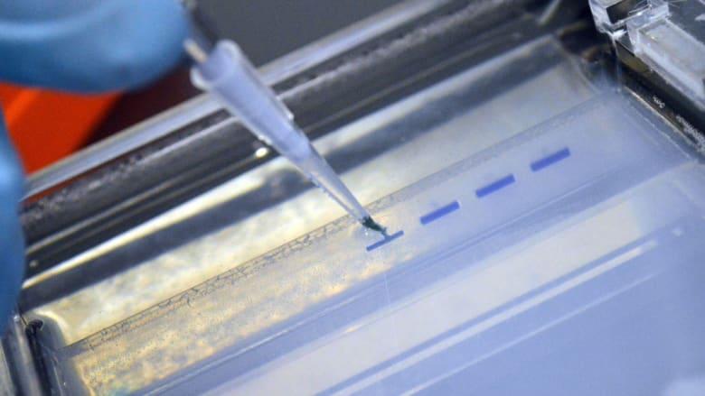 أمريكا تعلن عن ازدياد الإصابة بمتلازمة نقص المناعة المكتسبة في إنديانا