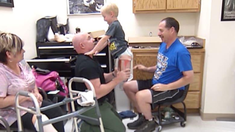 بالفيديو.. طفل في الرابعة يتجاوز مرضا نادرا بتركيب رجلي TRANSFORMERS