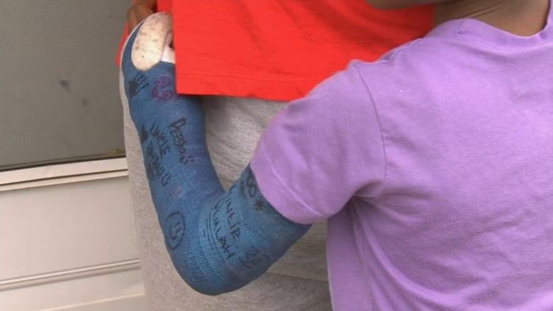 طفلة كسرت ذراعها بالمدرسة.. وسط تجاهل المعلمين والممرضات