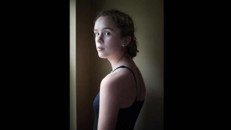 المراهقة في قوقعة.. كيف يعيش المصابون بانحناء العمود الفقري؟