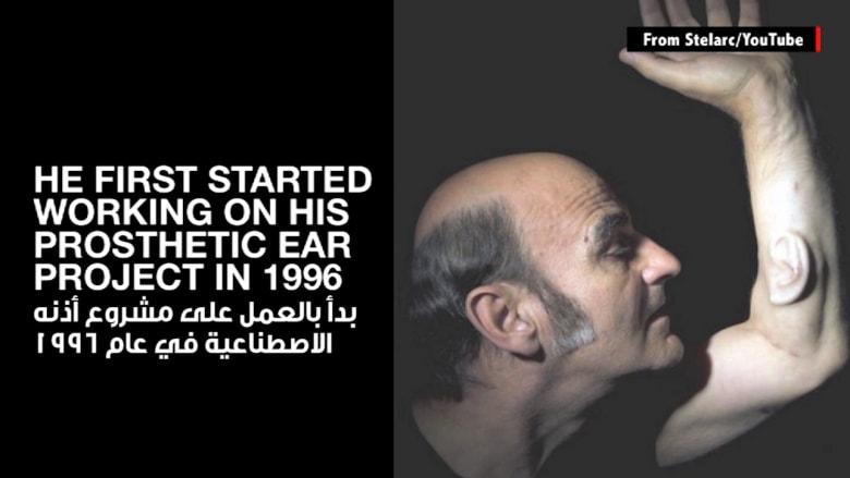 لن تصدق هذا.. رجل يزرع أذناً في ذراعه!