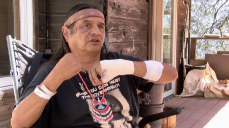 بالفيديو.. رجل يروي قصة نجاته من هجوم دب