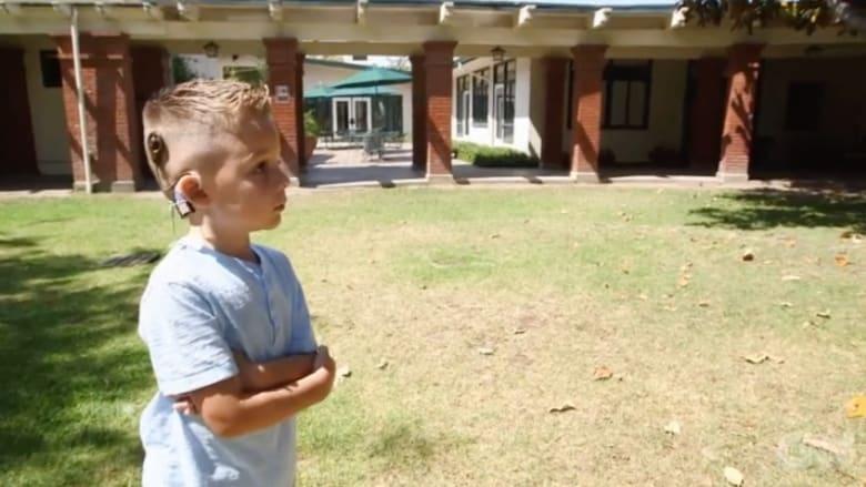 بالفيديو.. طفل أصمّ يسمع صوت أسرته لأول مرة بعد زراعة جهاز بالدماغ