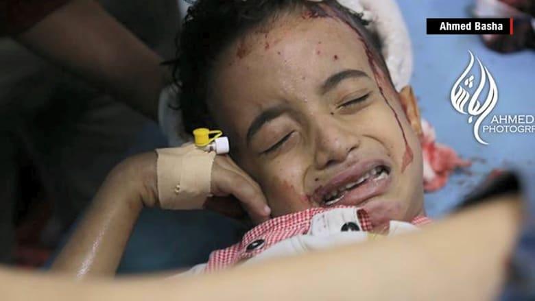 """طفل يمني جريح يشغل تويتر بصرخة """"لا تدفنوني"""""""