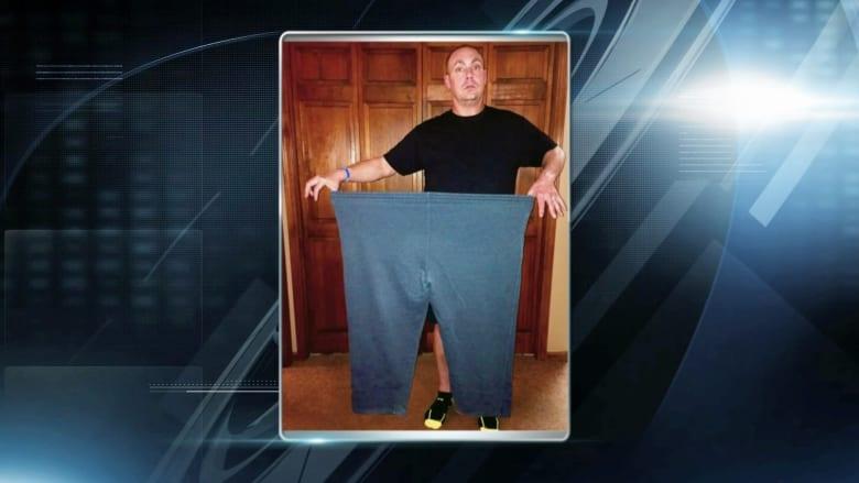 كيف خسر هذا الرجل 70 كيلوغراماً من وزنه بـ10 أشهر بعد معاناة مع السمنة؟