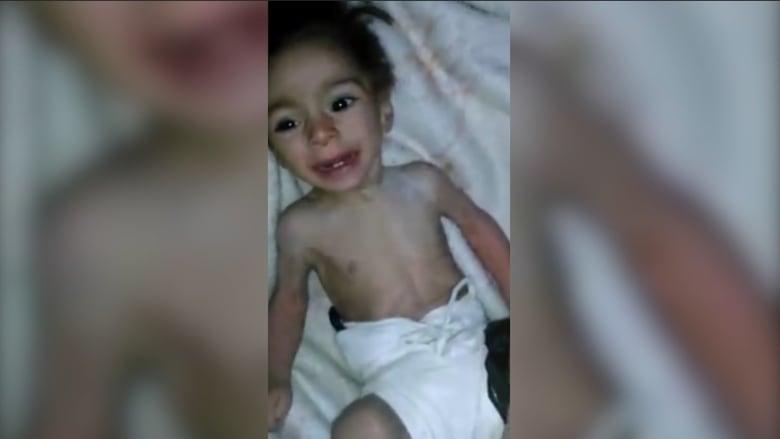 بالفيديو: أطفال بلدة مضايا السورية يموتون جوعاً