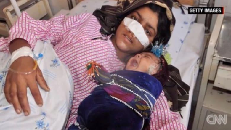 """بالفيديو: أفغاني يقطع أنف زوجته بسبب """"الغيرة"""""""