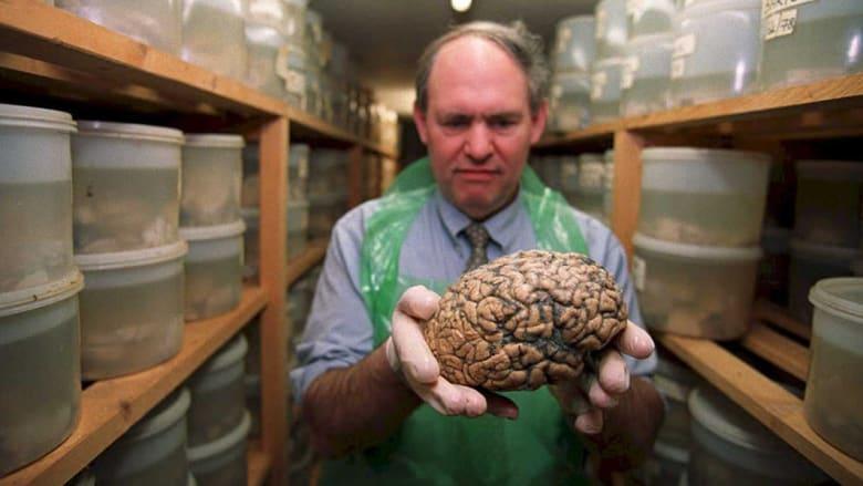 اتبع هذه الخطوات البسيطة للحفاظ على كفاءة دماغك مع التقدم في العمر