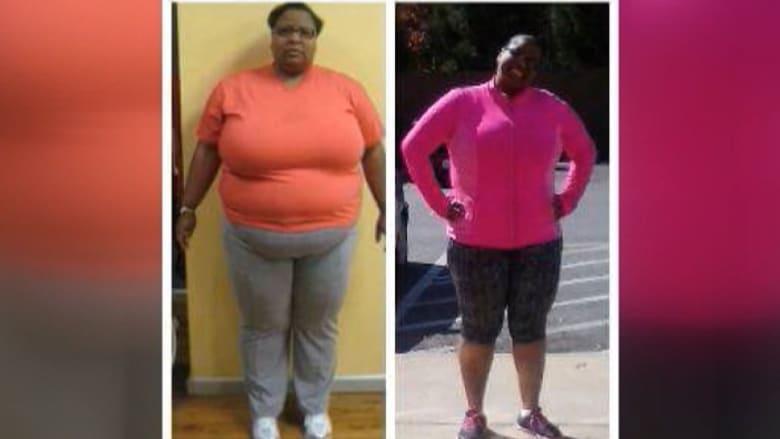 بالفيديو: فتاة تتخلص من مرضي السكري والكوليسترول وتفقد 58 كيلوغراماً من الوزن