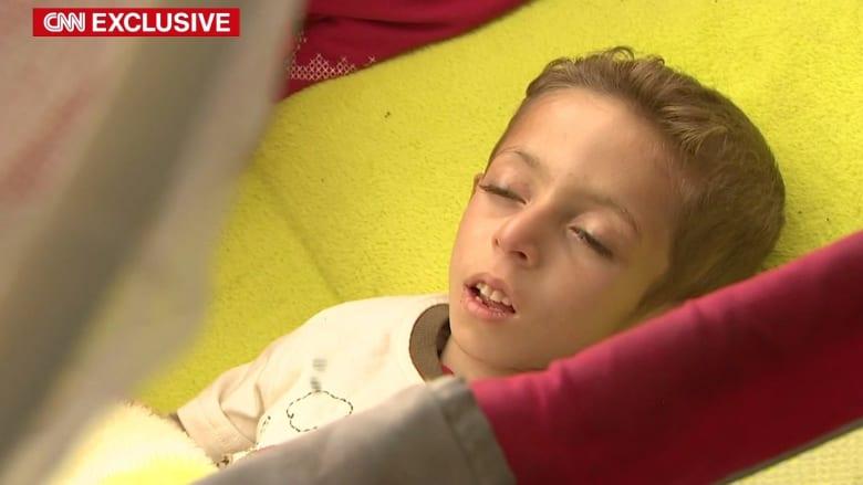 شاهد.. مأساة طفل سوري لاجئ يحتضر أمام عائلته