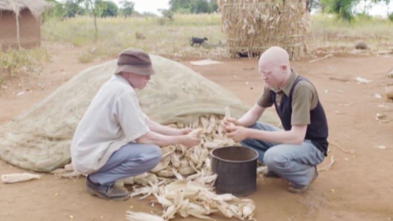 معتقدات شعبية تعرض المصابين بالمهق في مالاوي للقتل وبتر الأعضاء