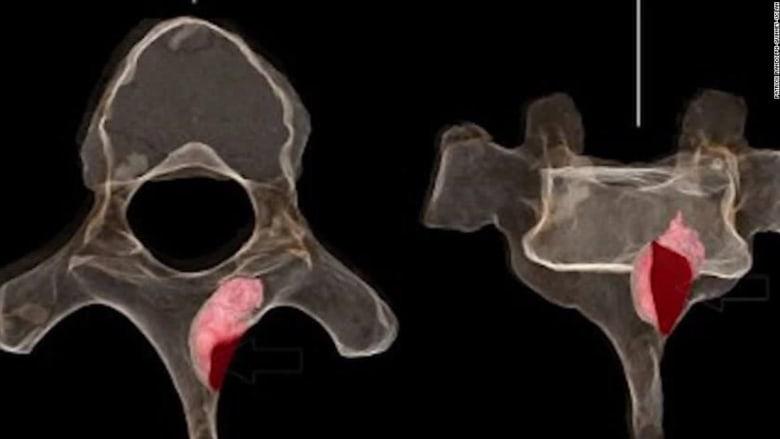 اكتشاف أقدم ورم سرطاني في أحفورة عمرها أكثر من مليون عام