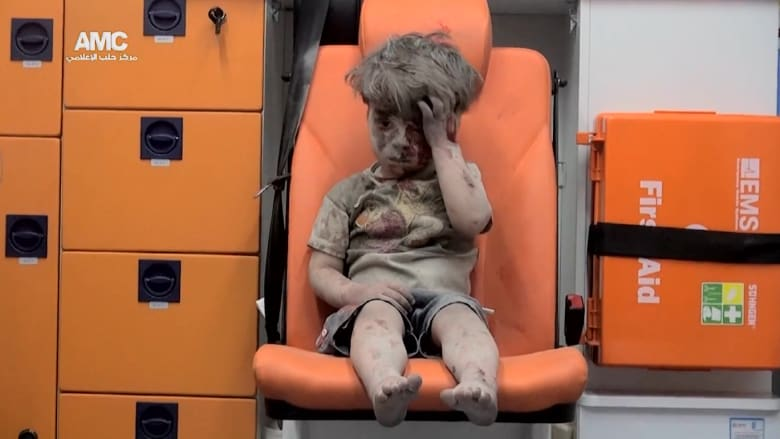 """ملتقط صورة طفل حلب """"عمران"""" لـCNN: هذا هو الوضع اليومي في حلب"""