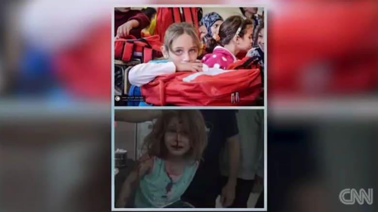 صور طفلة سورية قبل وبعد القصف تهز مشاعر العالم