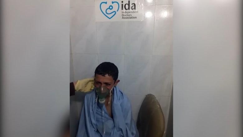 """""""هل سأموت؟"""".. طفل سوري يعاني بعد قصف كيماوي محتمل"""