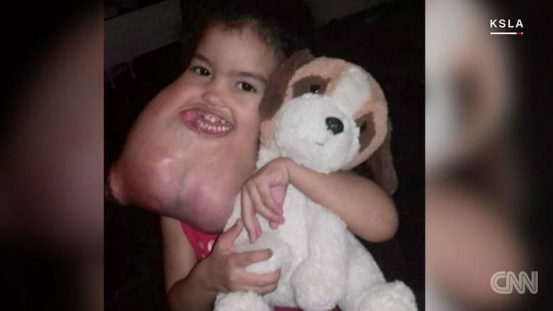 أطباء يزيلون ورما هائلا من وجه فتاة صغيرة