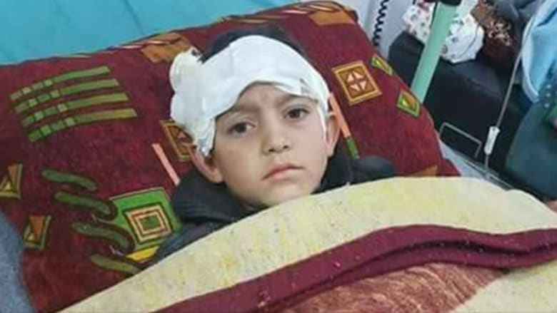 """""""بابا شيلني"""".. صرخة طفل سوري مبتور الساقين إثر القصف"""