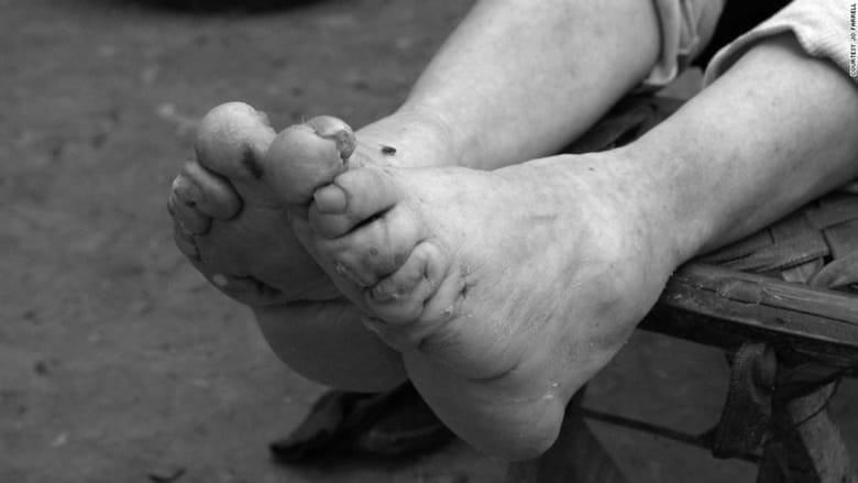 العمل وليس الجنس..الهدف من ربط أقدام نساء الصين