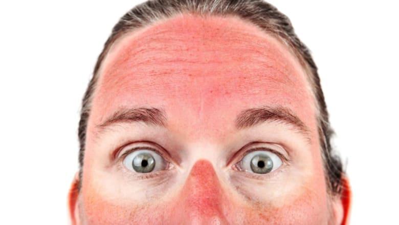 كيف يتصدى الجسم لأمراض فصل الصيف الشائعة؟
