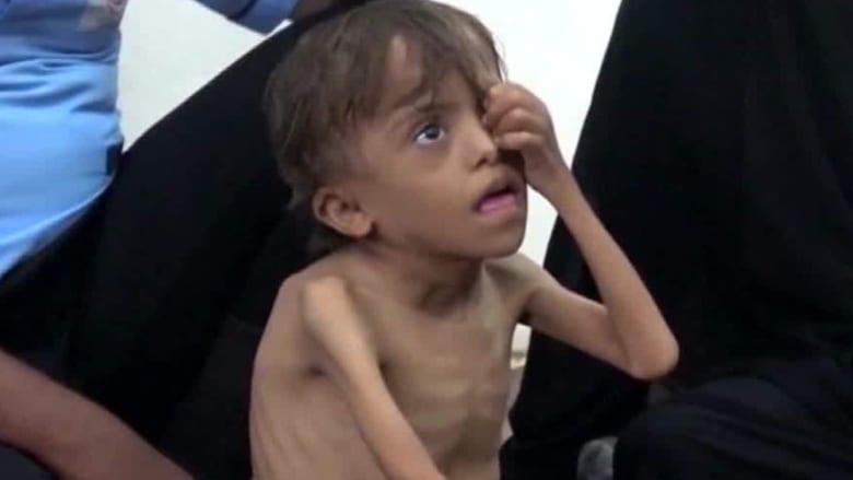 صراع ومجاعة وكوليرا.. آلاف الأطفال يواجهون الموت وسط الحرب المنسية
