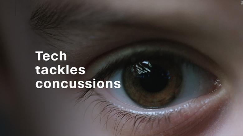 كيف يمكن تشخيص ارتجاج من حركة العينين؟