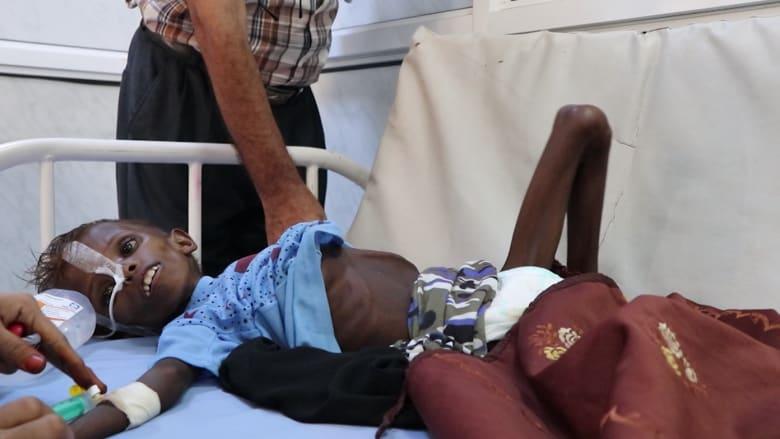حصرياً على CNN.. هذه هي حال أطفال مناطق الصراع باليمن